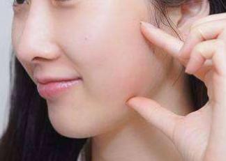 上海美立方整形医院做激光除痘疤 恢复平滑美肌