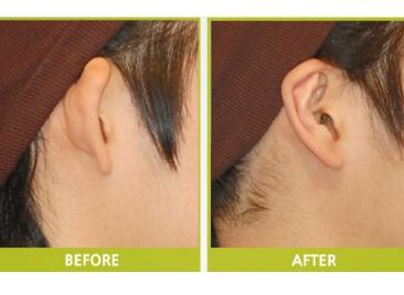 唐山金荣医院整形科招风耳矫正方法有哪些 多久可以恢复