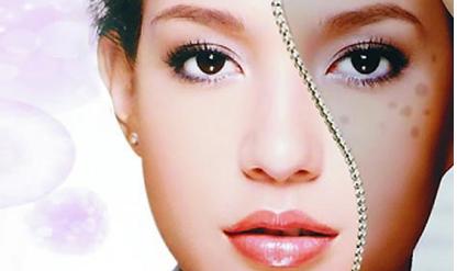 上海激光祛斑多少钱 激光祛斑后留疤吗