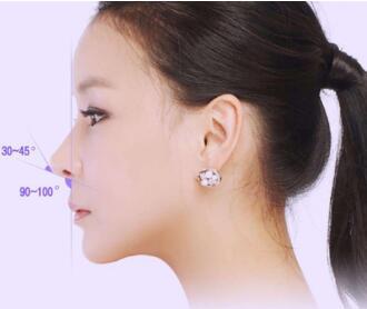 温州东华医院整形科鼻尖整形有风险吗 还原娇小鼻子