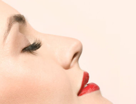 鼻子缩小手术适宜人群 三亚圣迪亚整形医院鼻翼缩小价格