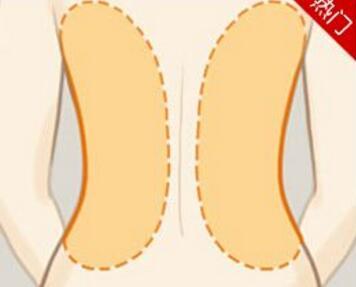 济南吸脂哪家好 背部吸脂有哪些优势呢