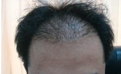 种植头发要把头发剃光吗 沈阳植发医院哪家好