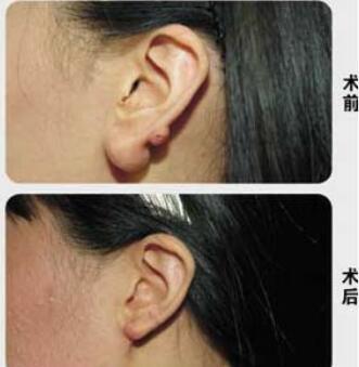 广州耳部整形价格表 广州整形美容医院耳垂再造需要多少钱呢