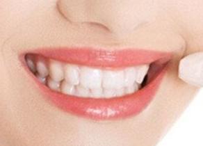 牙齿畸形有什么危害 沈阳爱齿口腔门诊部可以牙齿矫正吗