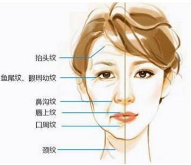 面部除皱用什么方法好 上海电波拉皮除皱多少钱