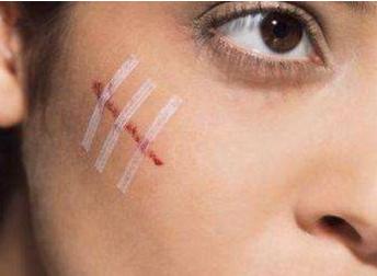 长沙伊容疤痕整形医院去疤痕好吗 手术去疤痕多少钱