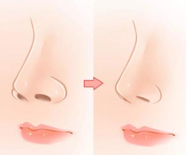 鼻孔很大可以通过什么方法改善 鼻翼缩小术多少钱