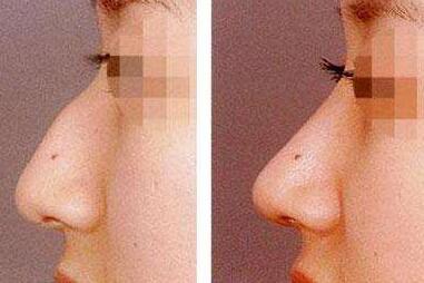 广州粤美整形医院驼峰鼻矫正的优点 让美丽更近一步