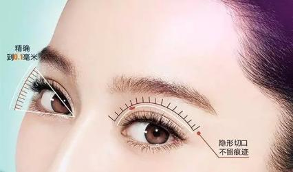 韩式双眼皮好吗 上海复丽整形医院割双眼皮多少钱