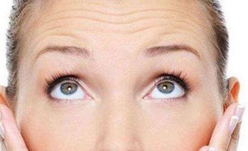 北京西美斯整形激光祛抬头皱纹 实现面部肌肤的美化