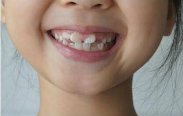 郑州牙齿矫正哪里好 牙齿矫正多少钱