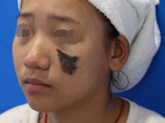 深圳景田医院整形科激光去胎记的优点 去除胎记不留尴尬