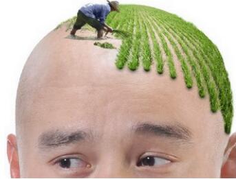 北京世熙整形医院植发科头发种植有哪些特点呢 有后遗症吗