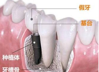 上海拜尔口腔整形科种植牙齿好吗 种植牙齿多少钱