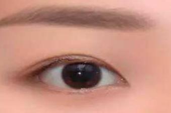 激光祛眼袋几个疗程 宁波明州整形医院激光祛眼袋效果