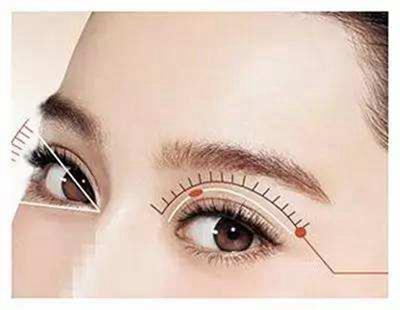【眼部整形】双眼皮/开眼角 双目迷人让你快速脱单