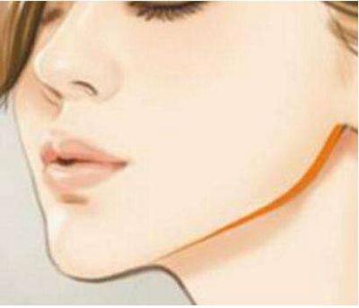 下颌角肥大怎么办 广州时光下颌角整形轻松解决国字脸