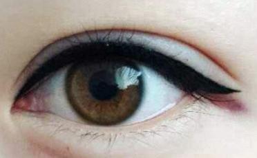 汕头伊丽莎白整形和汕头华美整形哪家做眼睑矫正好 眼睑矫正有什么危害