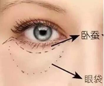 广州丘山整形医院吸脂去眼袋有哪些优势 和眼袋说拜拜