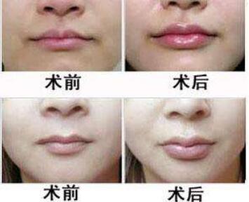 金华李丹整形医院重唇整形需要多少钱 恢复时间要多久