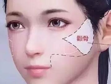 镇江中山医院整形科颧骨整形需要多少钱 让你美丽到底