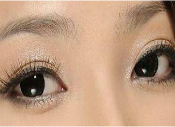 深圳可丽雅整形医院激光去黑眼圈需要多少钱 赶走熊猫眼
