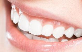 杭州达仑口腔门诊部隐形牙齿矫正有5点好处 牙齿矫正需要多长时间