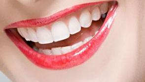 杭州品凯口腔门诊部烤瓷牙的使用年限是多久 烤瓷牙的优点