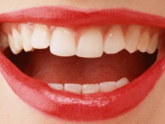 杭州齐尔口腔门诊部地包天矫正手术恢复时间是多久 矫正地包天会疼吗