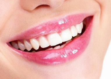 西安百思美口腔整形医院冷光牙齿美白 摆脱牙齿问题的尴尬
