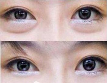 四川广安阿蓝整形医院去眼袋手术多少钱啊 激光祛眼袋多久见效
