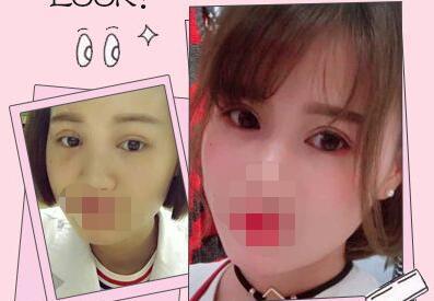 上海眼部整形医院哪家好 上海徐剑炜整形医院双眼皮修复的优势有哪些