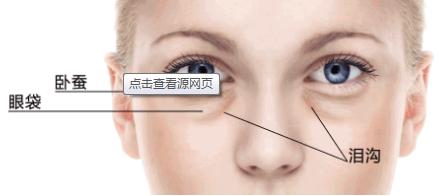 苏州美立方激光去眼袋多少钱 眼袋是怎么形成的