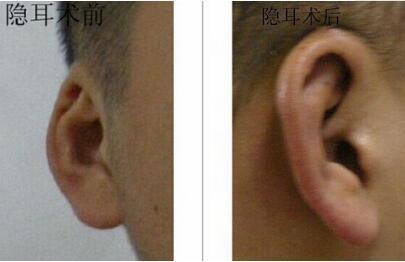 金华华美整形医院隐耳矫正手术后的特点 还你一个漂亮耳朵