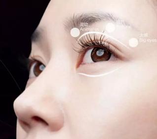 激光去眼袋效果能维持多久 荆州名韩去眼袋多少钱