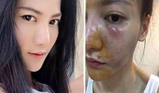 """泰国网红""""小天使""""打美容针6年 皮肤逐渐红肿溃烂"""