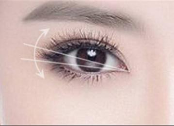 想要拥有迷人双眼皮吗 兰州嘉琳田海峰埋线双眼皮来帮你