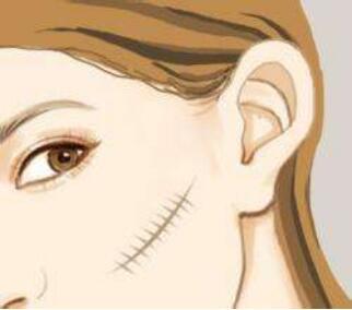 祛除疤痕有哪些方法 深圳博爱医院整形科激光祛疤的优点