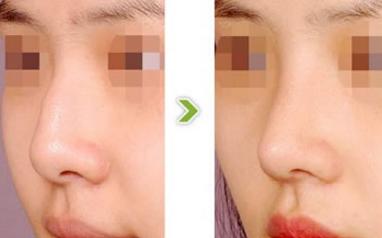 哈尔滨歪鼻矫正手术需要多少钱 歪鼻矫正效果好吗