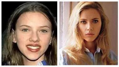 欧美女星整容更偏爱缩鼻术和丰唇