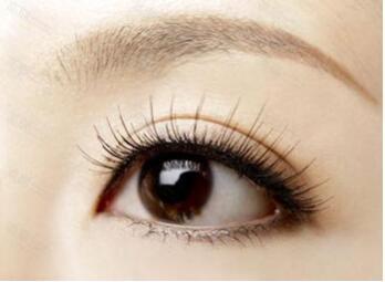 深圳仁瑞国际植发医院睫毛种植的效果 禁忌症是什么