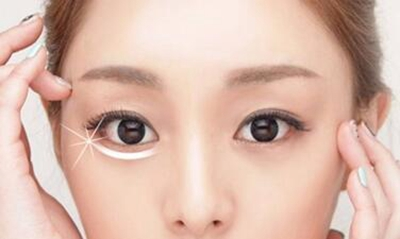 广州美贝尔整形吸脂去眼袋多少钱 能保持多久