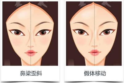 北京假体隆鼻手术收多少钱 假体隆鼻用哪种材料好