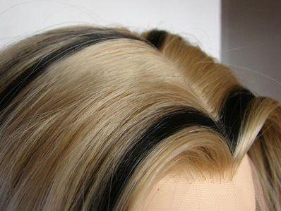 哈尔滨美佳娜植发怎么样 美人尖是如何种出来的