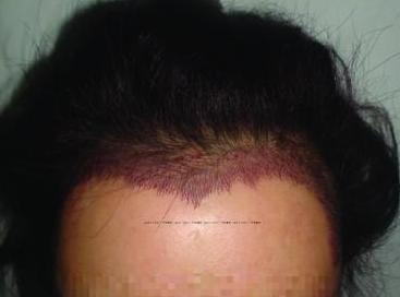 宁波植发际线哪好 发际线种植后多久能看出效果
