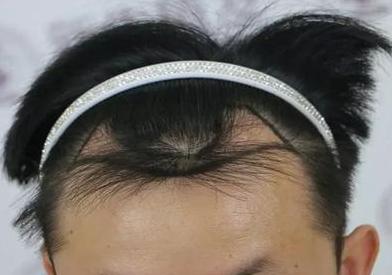 上海美莱植发怎么样 植发际线需要多少钱