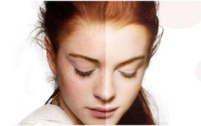 美白祛斑的方法哪种好 桂林美丽焦点整形光子祛斑优势