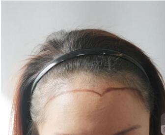 北京红旗植发医院发际线种植的优点 会留疤吗