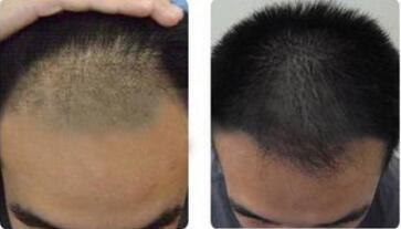温州科发源植发医院头发加密的效果好吗 让你容光焕发